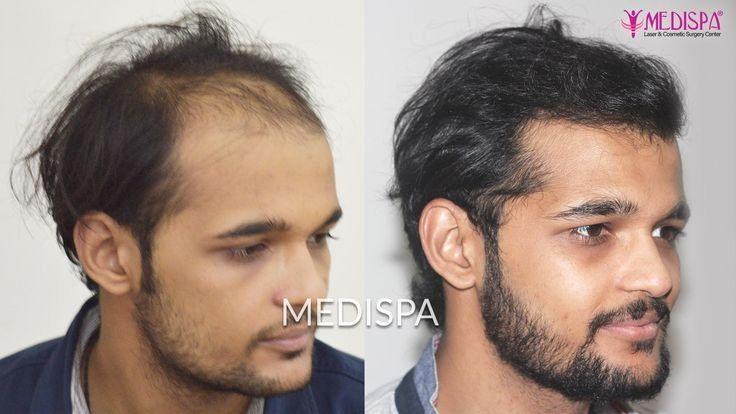 Best Hair Transplant Surgeons   Hair Loss Causes   Best hair