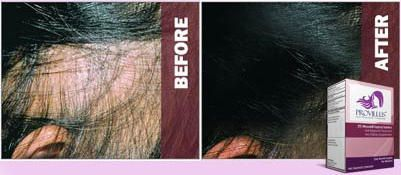 Provillus Hair Loss Solution for women