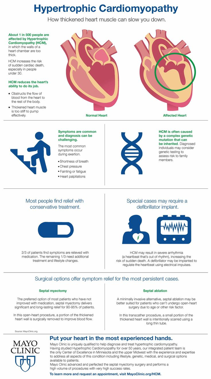 Learn more about Hypertrophic Cardiomyopathy. Other health tip infographics: mayohealthhighlights.startribune.com
