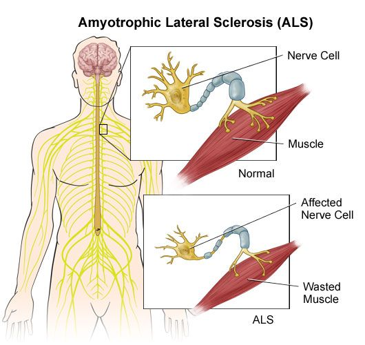 Amyotrophic Lateral Sclerosis -  (ALS) is a disease that breaks down tissues in the nervous system (a neurodegenerative disease) of unknown cause that affects the nerves responsible for movement. It is also known as motor neuron disease and Lou Gehrig's disease, after the baseball player whose career it ended. ALS is a disease of the motor neurons, those nerve cells reaching from the brain to the spinal cord (upper motor neurons) and the spinal cord to the peripheral nerves...