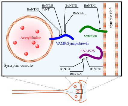 Botulinum toxin - Wikipedia