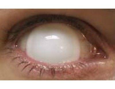 15mm Blind White lenses