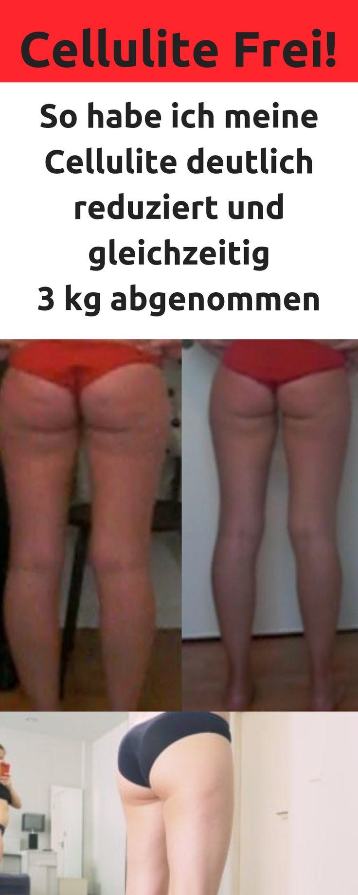 So bin ich meine Cellulite endlich losgeworden!