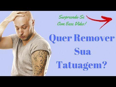 Remoção De Tatuagem Sem Lazer   Guia Para Remover Tatuagem Em Casa Sem Dor!