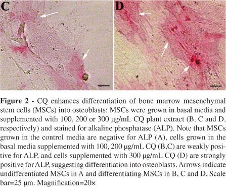 Petroleum ether extract of Cissus quadrangularis (Linn.) enhances bone marrow mesenchymal stem cell proliferation and facilitates osteoblastogenesis