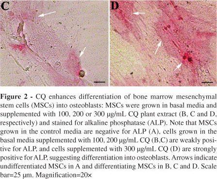 Petroleum ether extract of Cissus quadrangularis (Linn.) enhances bone marrow mesenchymal stem cell proliferation and facilitates osteoblastogenesis
