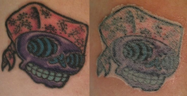 1000 images about tattoo removal laser on pinterest for Getting a tattoo removed