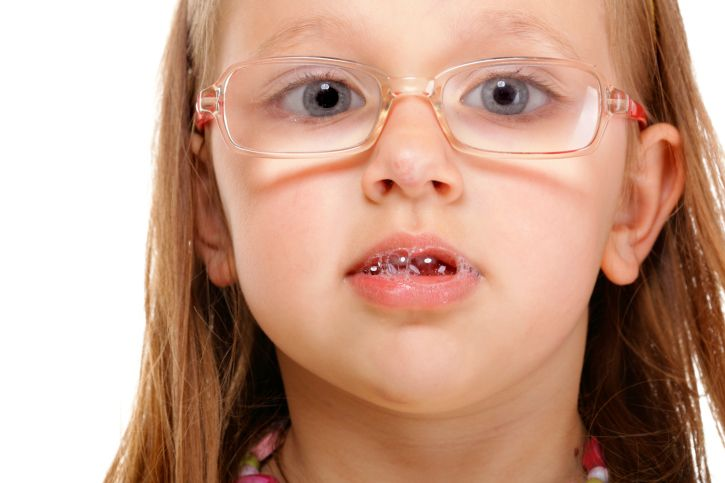 Seven Tips to Stop Your Child with Special Needs from Drooling
