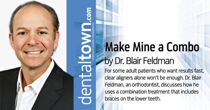 For some adult patients, Dr. Blair Feldman uses a combination treatment of braces on the lower teeth with Invisalign on the upper teeth, followed by full Invisalign treatment for the remainder of the time.