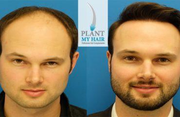 افضل مركز زراعة الشعر في تركيا صورة تامقالة