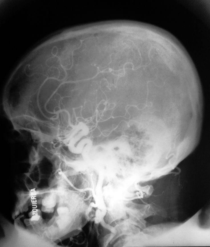 Angiograma carótideo (cráneo perfil): -Vasos. -Compara con el cráneo sin contrate.