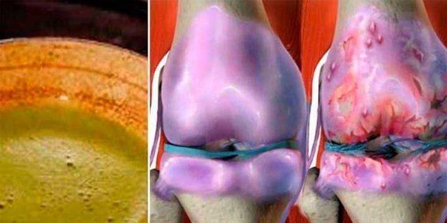 ¡Esta receta tiene locos a todos los médicos! Sana tus rodillas y reconstruye huesos y articulaciones de manera inmediata!
