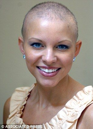Hairstyles For Alopecia Areata : 229 best hair alopecia & fall images on pinterest