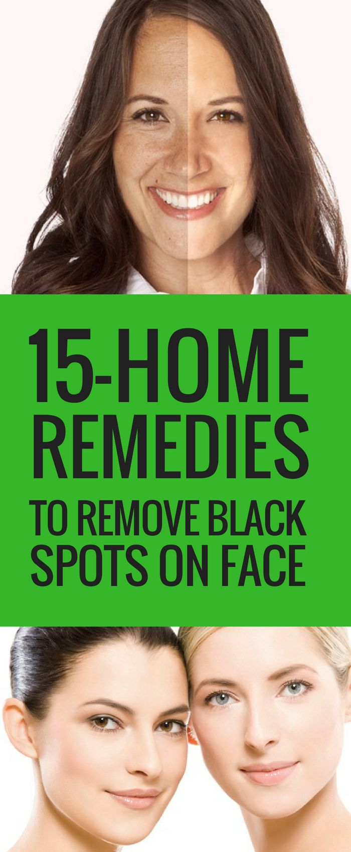 How to remove black spots on face quickly is a million dollar recurring question asked by many. Here is a full overview of how to get rid of the dark spots.