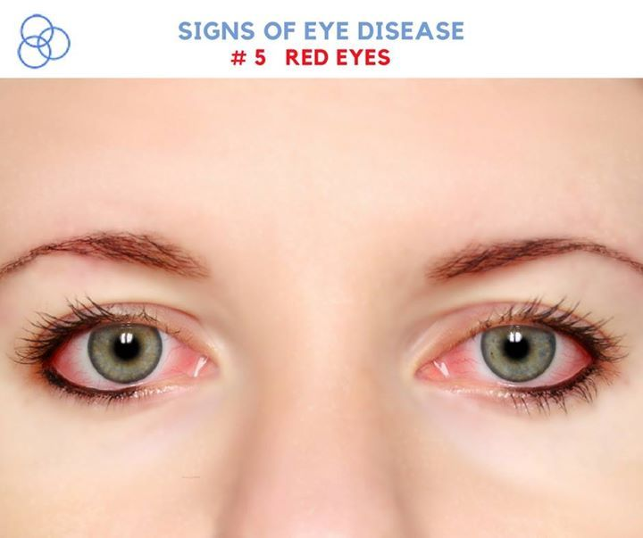 If the redness in your eyes seems to be worse than normal consider the possibility of uveitis glaucoma or even ocular herpes. Schedule your next eye care appointment with us @ 228.832.1242 just to be safe. #eyecare #health #mississippi #bettersafethansorry - http://ift.tt/1HQJd81