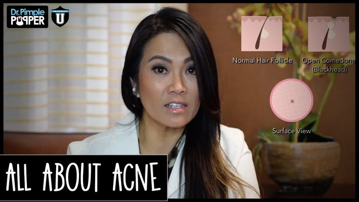 I get a lot of questions at the office, on my YouTube Channel - Dr. Sandra Lee (aka Dr. Pimple Popper), and on my Instagram all about Acne. What it is, how it forms and how we treat it at the dermatologists office.
