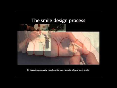 Smile Design Sydney and Smile Makeover with Sydney Cosmetic Dentist, Dr. Angelo Lazaris #smiledesign #smiledesignsydney #smilemakeover #smilemakeover #beautifulsmiles #digitalsmiledesign