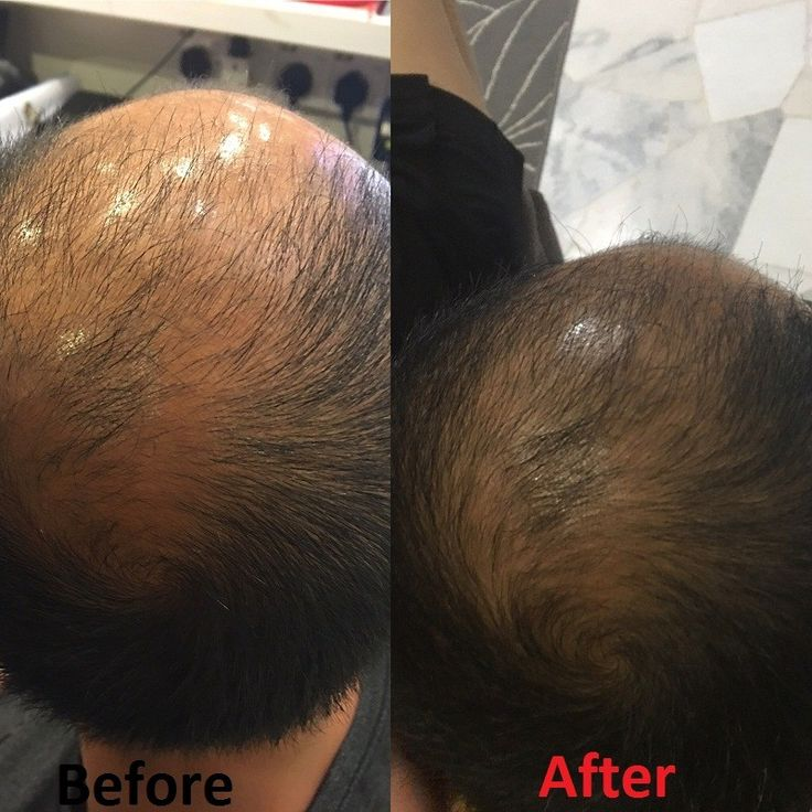 Silicone Free Shampoo that can solve your hair problem cause by mainstream shampoos in the market  #hair #shampoo #haircare #hairsolution #siliconefree #hairproblems