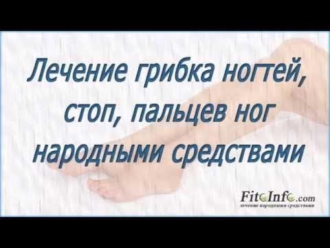 Эффективное средство от грибка ногтей на ногах – народные способы лечения