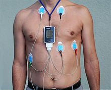 Reading Electrical Activity of the Heart with Holter Monitor