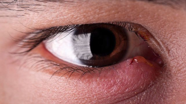 Your eyelids have lots of tiny oil glands, which can become clogged. When a gland is blocked, bacteria can grow inside. This is what causes a stye to develop.
