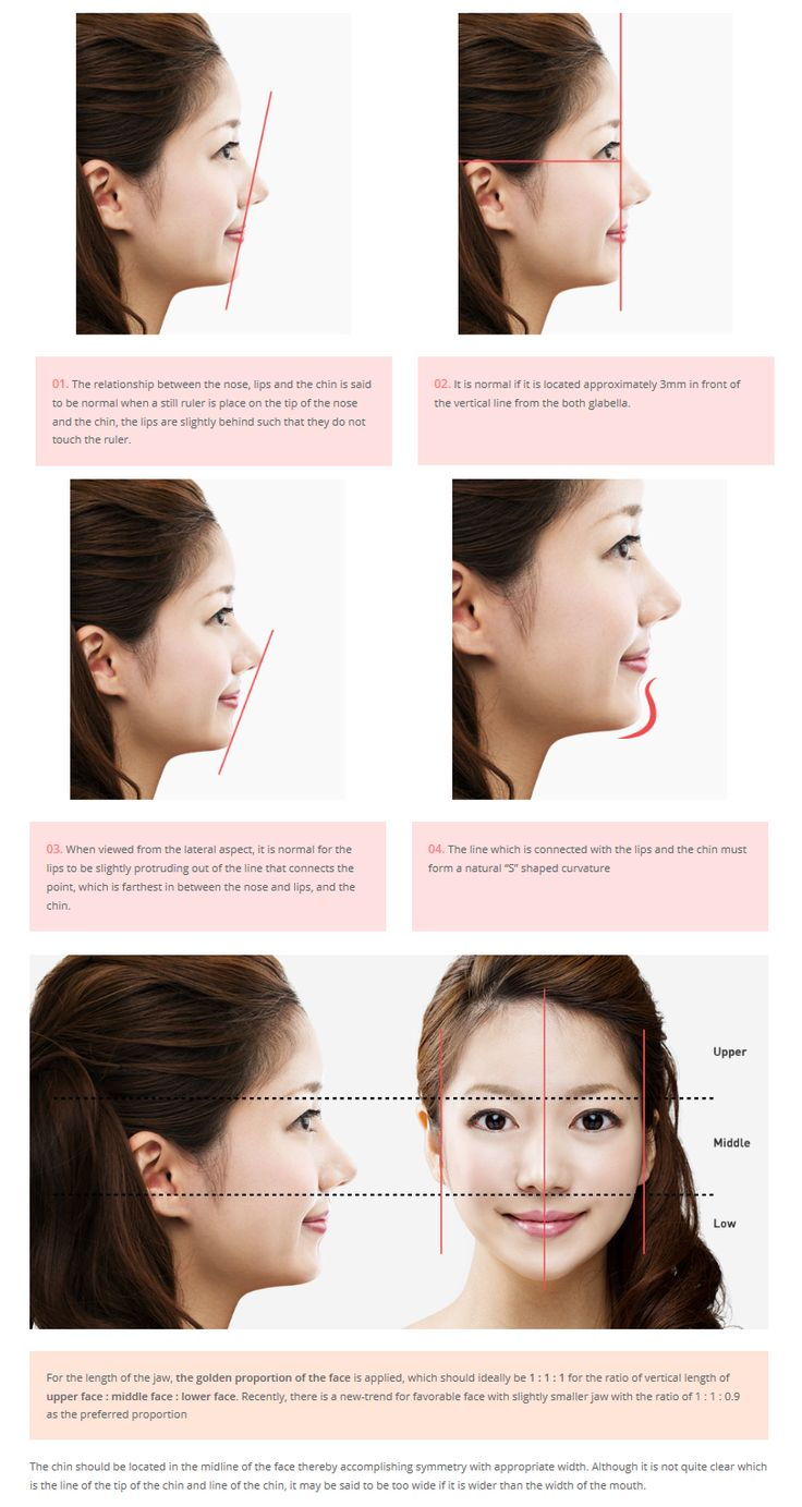 17 best ideas about Chin Reduction Surgery on Pinterest | Chin ...