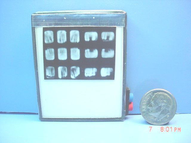 Dollhouse Miniature Xray Machine with Set of Teeth : E643-LB109