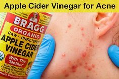 Apple cider vinegar has strong antibacterial and antifungal properties, which is why it is so powerful when it comes to preventing acne and skin infections. Apple cider vinegar face wash will also …