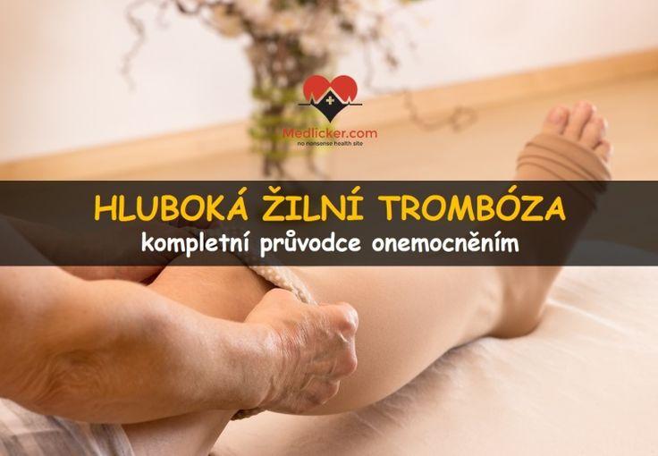 Hluboká žilní trombóza: příznaky, léčba, komplikace https://goo.gl/B7Nm9j