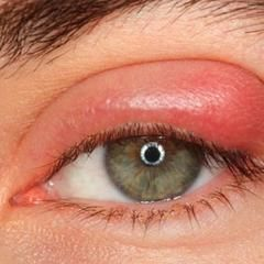 What you need to know about stye treatment #optometrist #eyehealth #stye #eyelovethesun