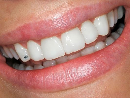 11 best images about teeth jewels on Pinterest | Image search ...