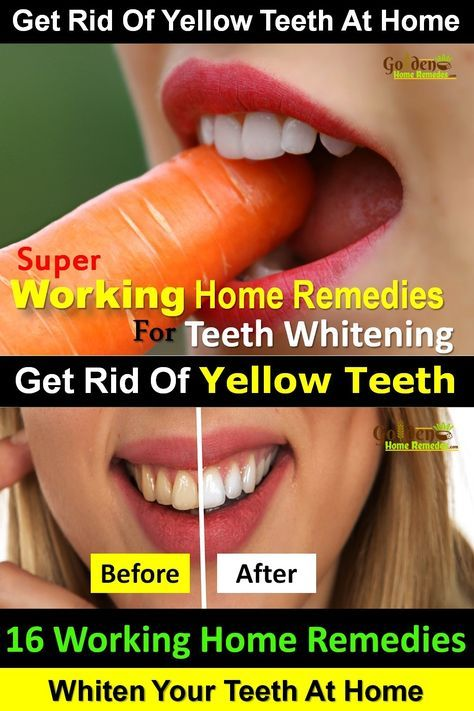 Teeth Whitening: 16 Natural Ways To Whiten Teeth At Home, Effective Home Remedies for Teeth Whitening, How To Get Rid Of Yellow Teeth At Home, Best Treatments For Yellow Teeth, Having white teeth and a bright smile is a dream of every person. Yellow or stained teeth can often be embarrassing. They can be caused by many things such as unhealthy oral hygiene, indulging in excessive tea, coffee or tobacco chewing, acidic drinks, smoking, certain medication and illness. Natural remedies are the…