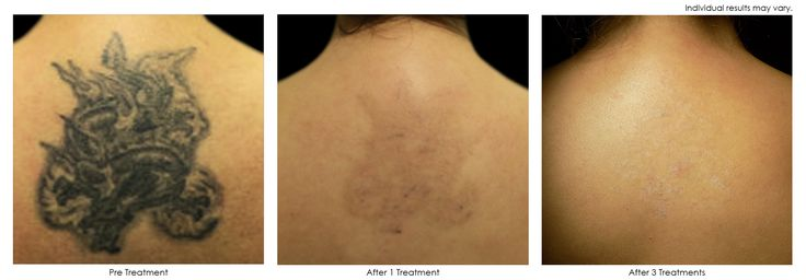 25 best ideas about picosure tattoo removal on pinterest for Picosure tattoo removal maryland