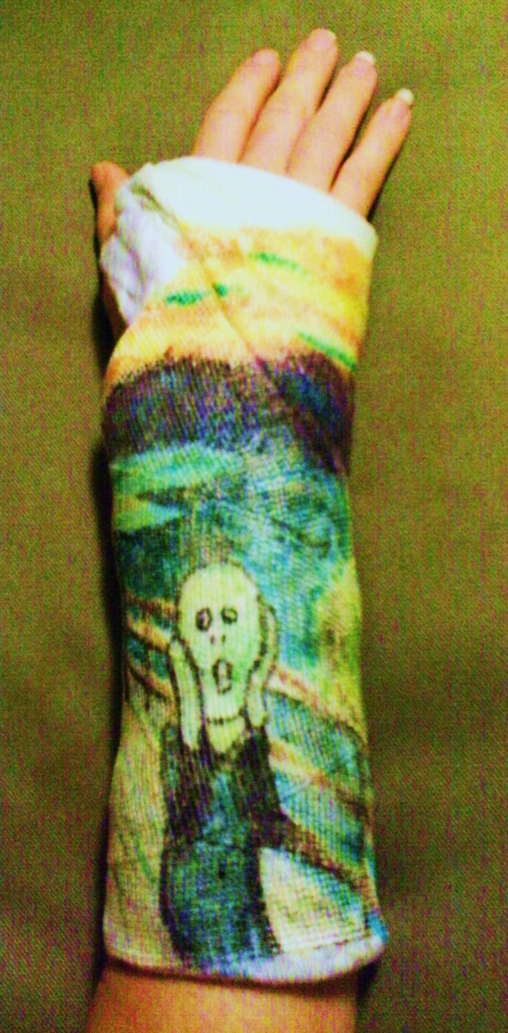 painted arm cast- The Scream