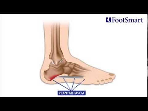 Do You Ever Feel Pain In Your Heel Or Arch When You Stand