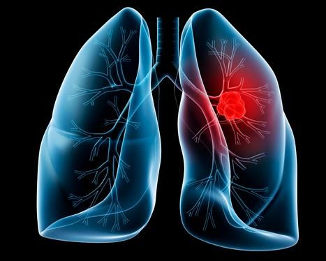 best cancer doctor in india Lung Cancer Centre in India Lung Cancer Hospital
