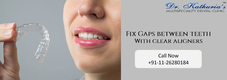 Fix Gaps Between Teeth with #ClearAligners #DrKathurias