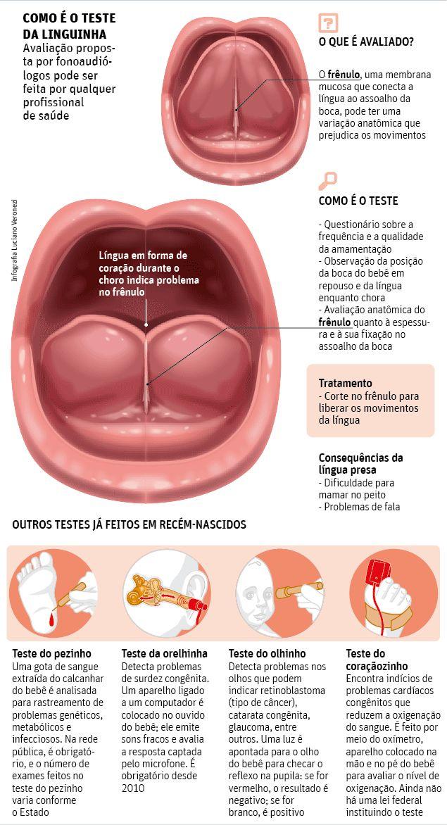 Projeto de lei do 'teste da linguinha' opõe pediatras e fonoaudiólogos - 10/01/2014 - Equilíbrio e Saúde - Folha de S.Paulo