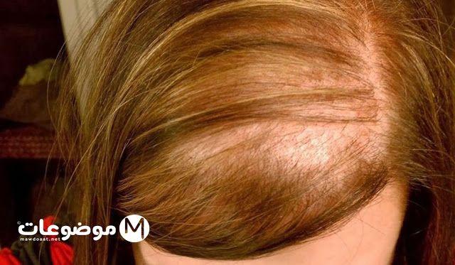 موضوعات دوت نت زراعة الشعر للنساء Hair Home Remedies Women