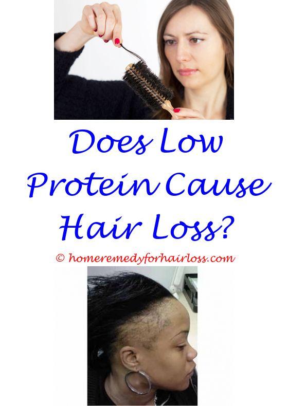 loss of hair due to stress guinea pig - luvox hair loss.does dax wax cause hair loss hair loss from water taurine shampoo hair loss 2433046496