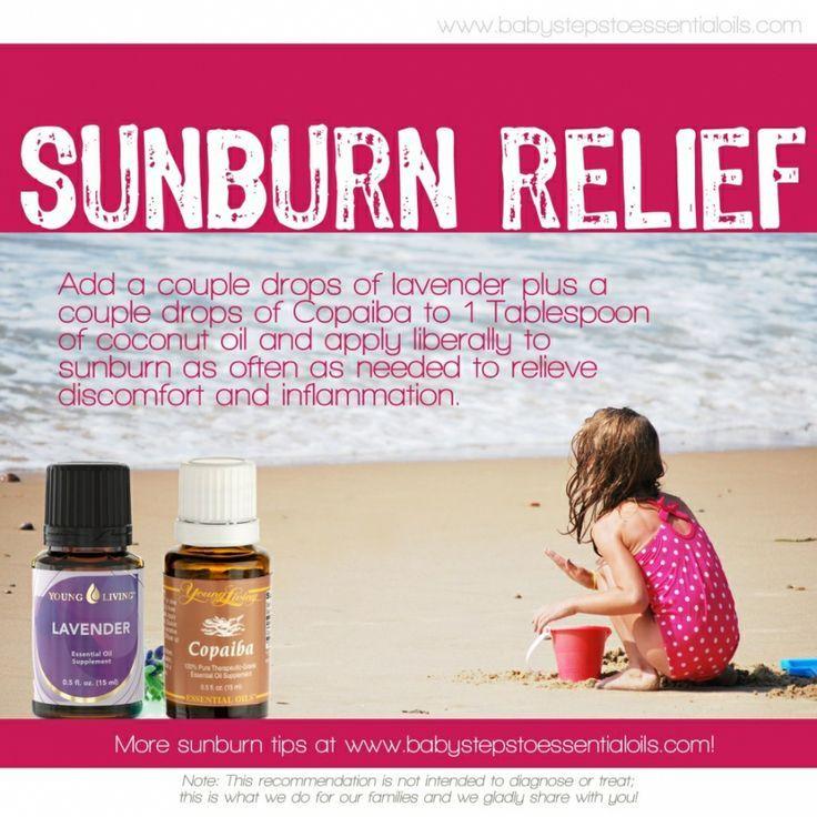 Natural Sunburn Relief on Pinterest | Sunburn Remedies, Sunburn ...