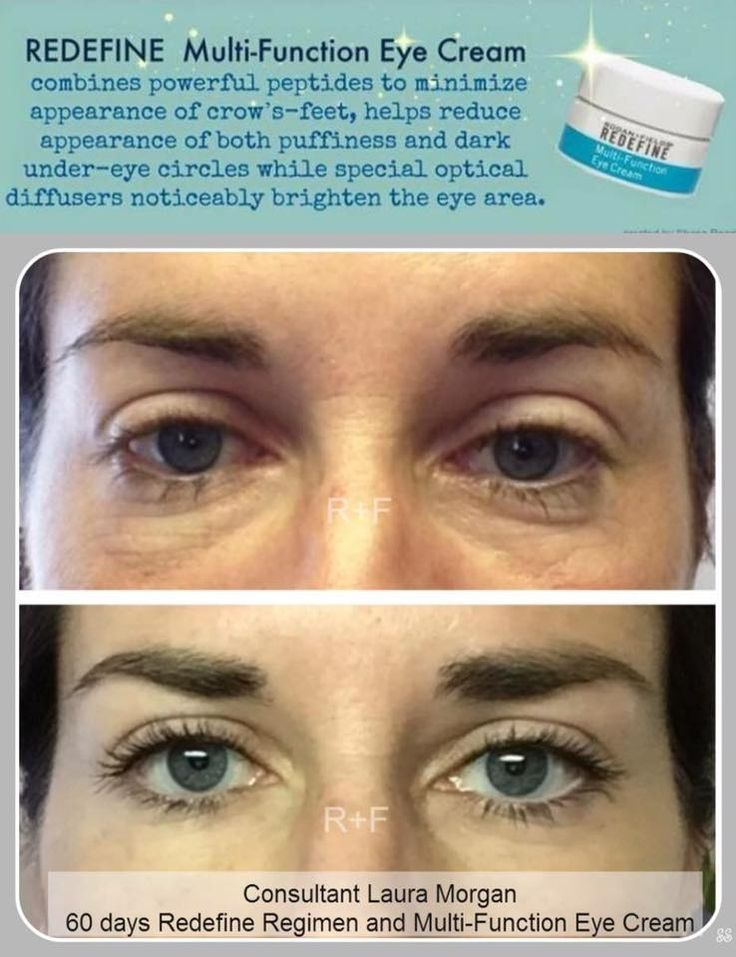 36 best Want to reduce Puffiness, Crows Feet, Dark Circles ...