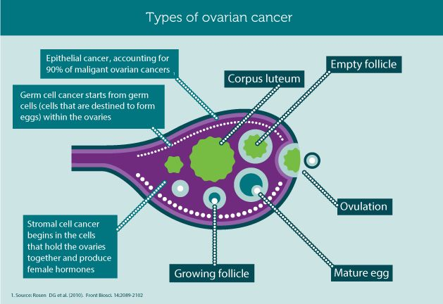 Types of Ovarian Cancer