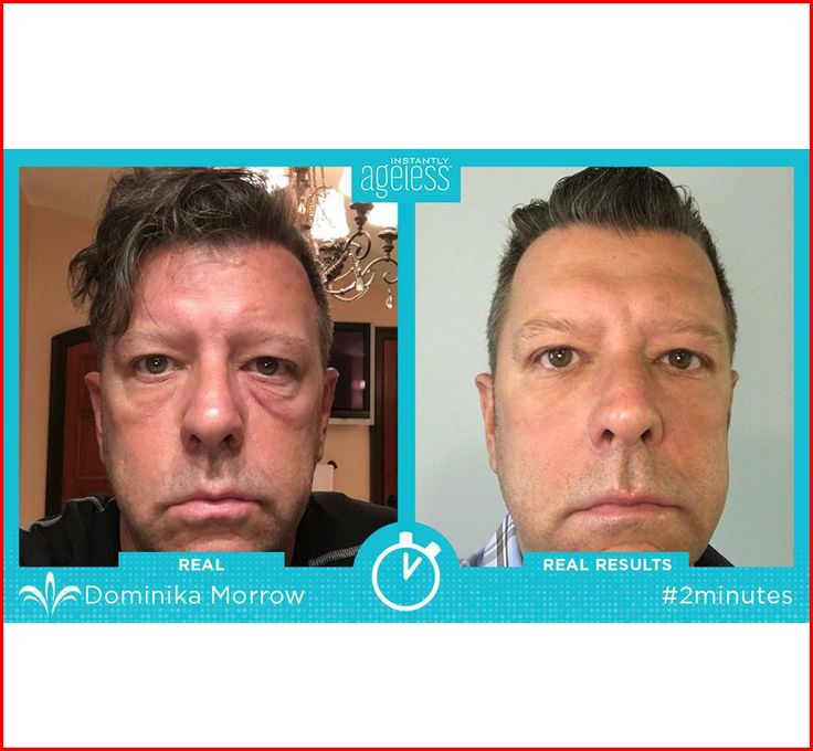 Instantly ageless GREAT results! I just love helping men and women look younger and feel better in just 2 minutes!