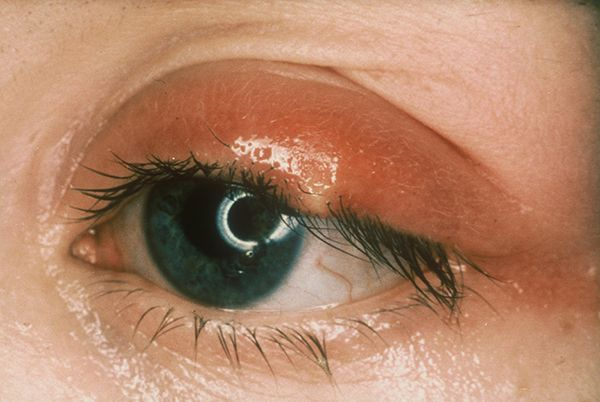 What is a stye? A stye is a common painful eyelid problem, where a small abscess forms at the base of an eyelash. It looks like a small yellow pus-filled spot. Vision is unaffected. Most styes get better on their own and do not need any treatment. Hot compresses can ease the pain and encourage the stye to burst.