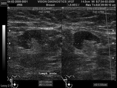 ultrasound breast radiologist in involvement