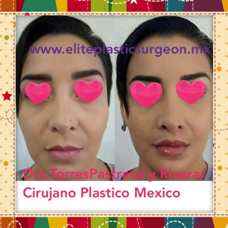 "Lip Lift Mexico Cirugía : ""gull-wing"" LIP LIFT + aumento de labio con Juvederm Vycross  *tecnica adquirida en Bélgica * Dra. Torres Pastrana y Rivera"