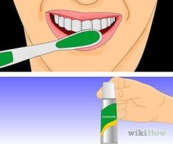 Treat Canker Sores or Mouth Ulcers - wikiHow