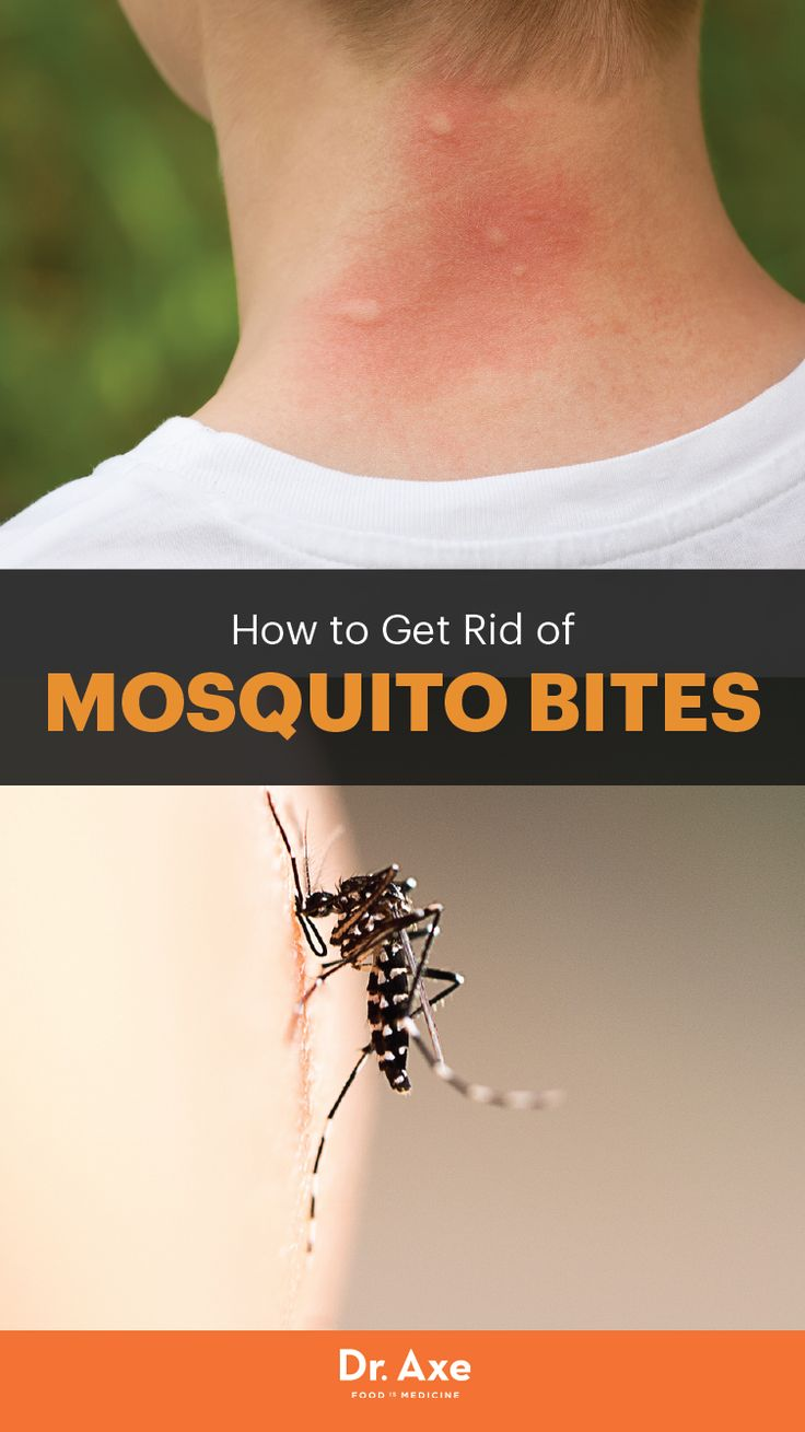 Top 5 Home Remedies for Mosquito Bites