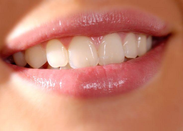Senyum akan nampak lebih indah saat disunggingkan oleh bibir yang nampak merah muda alami. Berikut adalah cara alami untuk membuat bibir nampak merah muda.